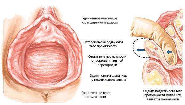 lyubitelskaya-erotika-muzhchini