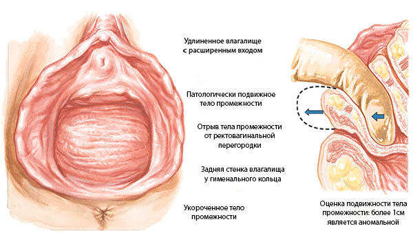 ebat-russkih-telok