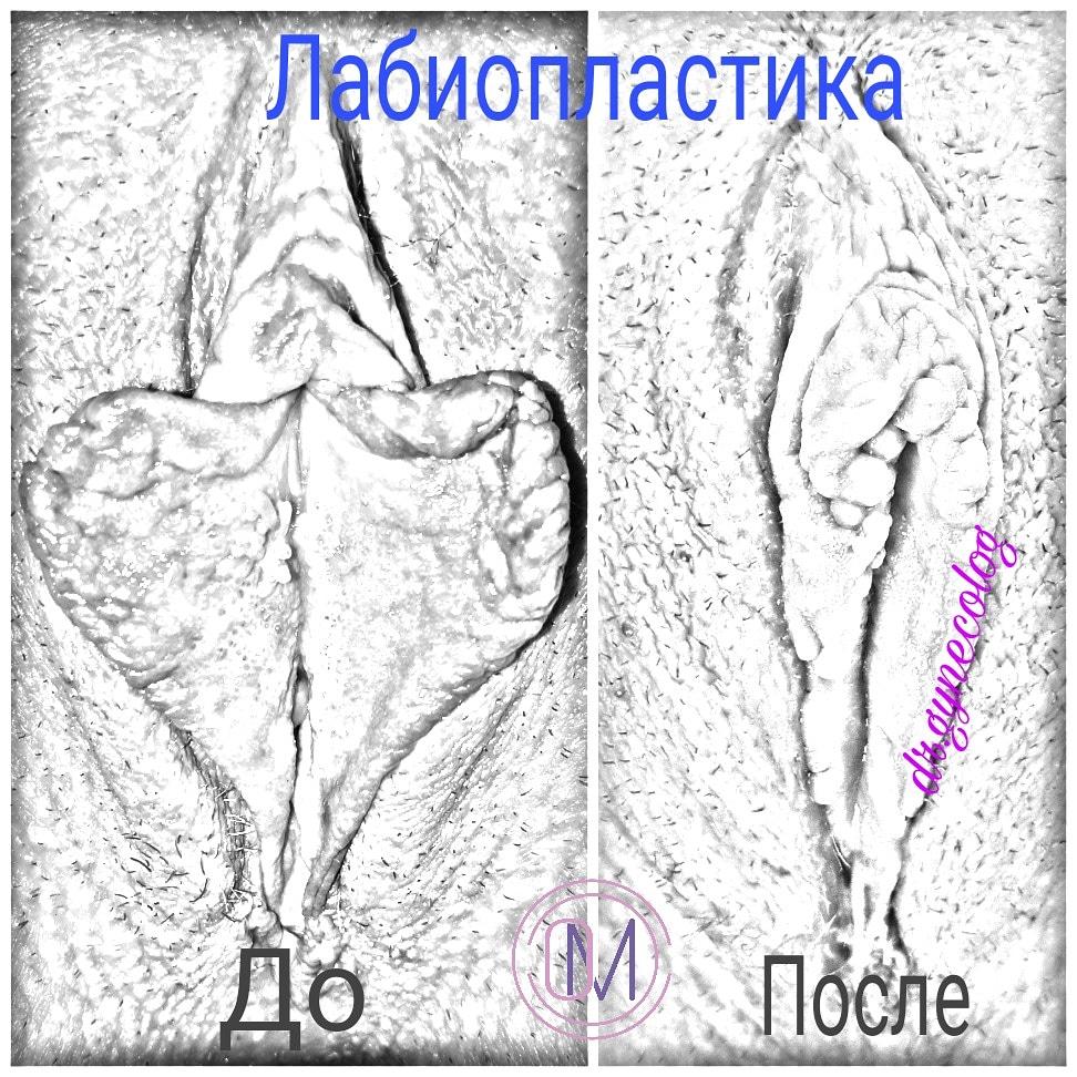 лабиопластика, labioplasty